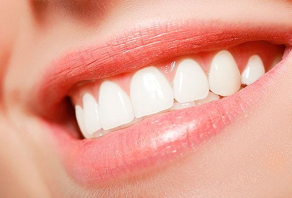 Diseño de Sonrisa en 6 Dientes Superiores en Cedritos