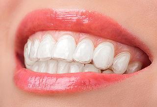 Retenedor Post Ortodoncia + Toma de Impresiones en Cedritos