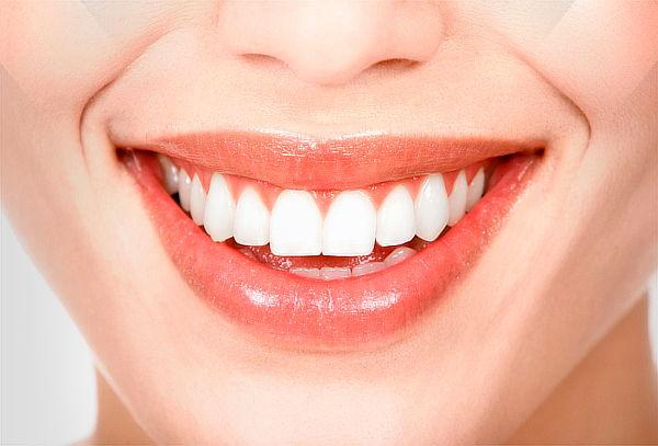 Diseño de Sonrisa 4 dientes en el Chico