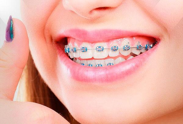Ortodoncia Correctiva Técnica ROTH en Brackets Convencional