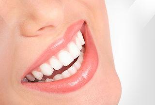 Diseño de Sonrisa 6 Dientes Frontales Colina