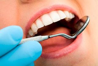 Blanqueamiento y Limpieza Dental en Galerias