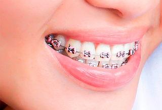 Montaje de Brackets Mini Roth + Limpieza Dental en Chapinero
