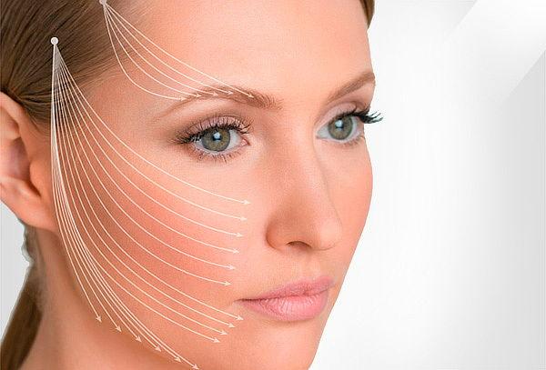 Estiramiento Facial con Hilos Tensores en  Renew
