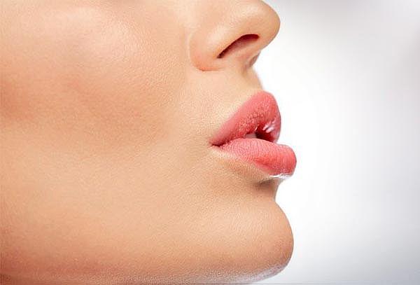 Baby Lips  No Invasivo con Derrmapen