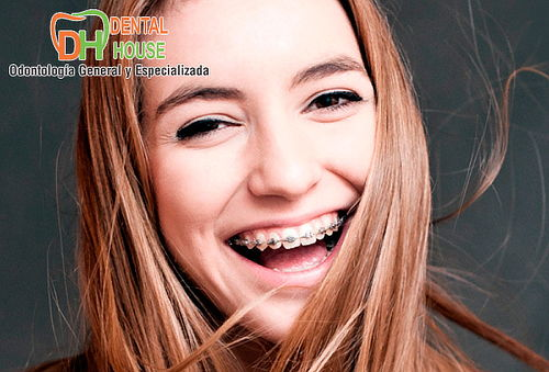 Ortodoncia con Brackets Mini Roth