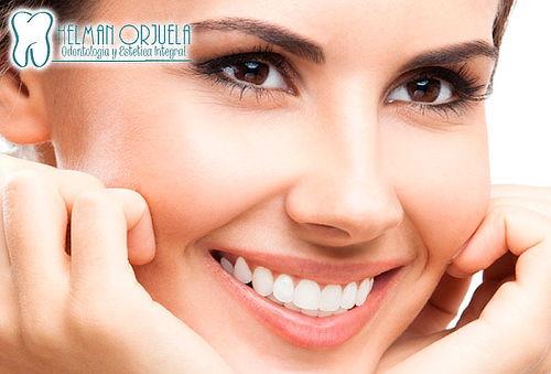 Diseño de Sonrisa con Resinas