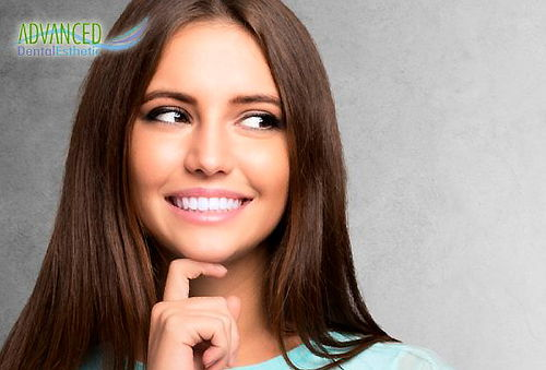 Diseño de Sonrisa en 4 Dientes Frontales + Micropulido