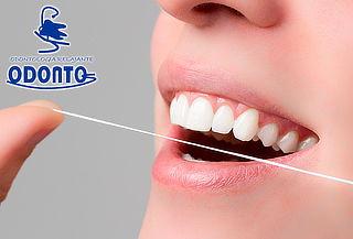 3 Sesiones de Blanqueamiento Dental Pola Office en Villa Luz