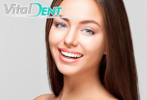 Blanqueamiento Dental Led en Modelia