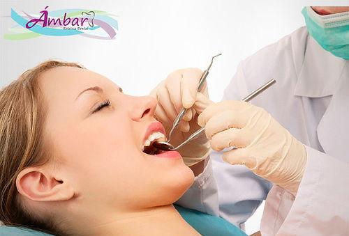 Remueve Cálculos + Desmanchado Dental