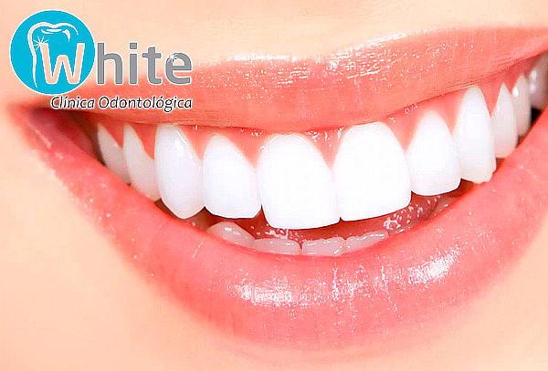 Blanqueamiento Dental Led + Remocion de Calculos