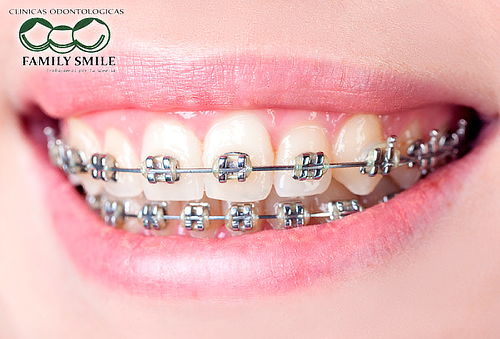 Brackets Mini Twin + Profilaxis en San Fernando