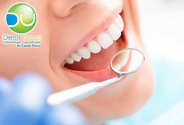 Limpieza Dental + Desmanchado