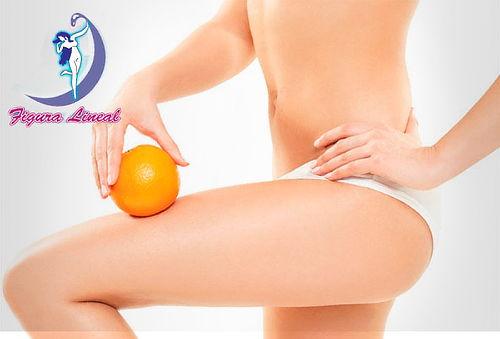 45 Sesiones Reducción y Eliminación Celulitis en Fontibón