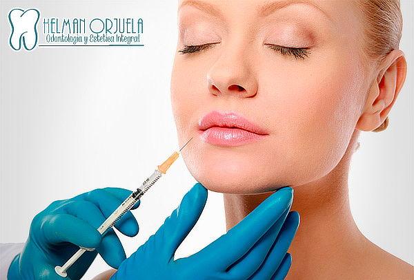 Relleno Facial o Labios con Acido Hialuronico