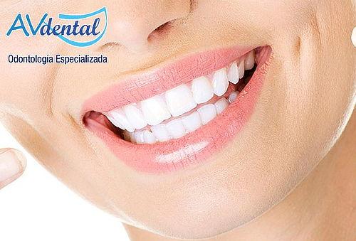 Blanqueamiento Dental con Láser en Belén Rosales