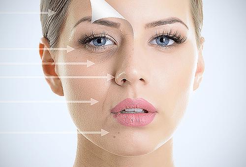 30 Unidades de Botox + Hialurónico Regenerativo con Dermapen
