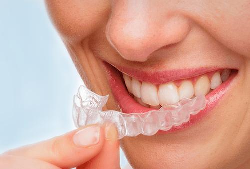 Guarda Dental y Limpieza con Ultrasonido 92%