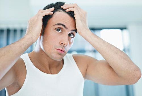 ADIÓS Alopecia