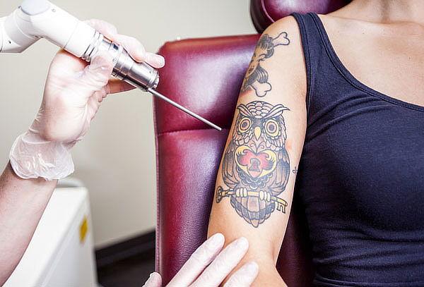 Eliminación De Tatuajes Con Láser 2 ó 3 Sesiones Eliminación De