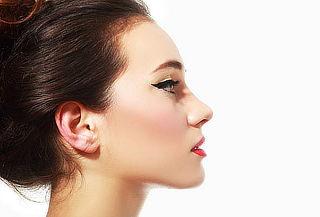 Rinomodelación con Ácido Hialurónico en Skin Medical Beauty