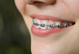 Brackets Metálicos Mini + Limpieza en RL Orthodontics Roma