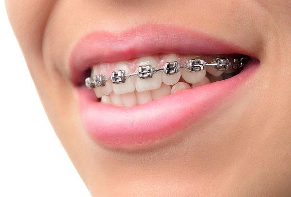 Colocación Brackets Estéticos Invisibles + Limpieza Dental