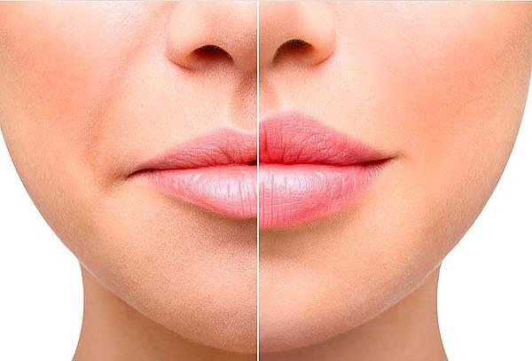 Resultado de imagen para acido hialuronico labios