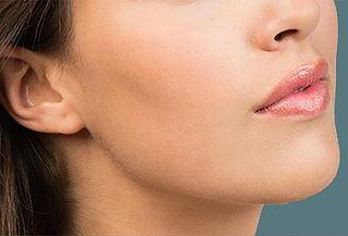 Cirugía de bolsas de bichat más ultrasonido