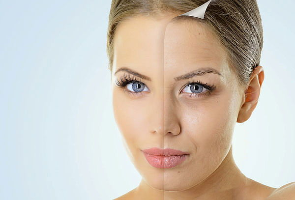 Radiofrecuencia Facial + Microdermoabrasión y Facial de Rosa