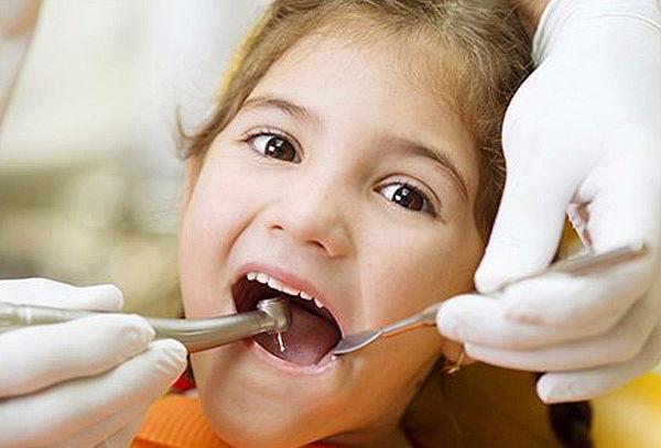 Limpieza Dental para Niños +Diagnóstico +Aplicación de Flúor
