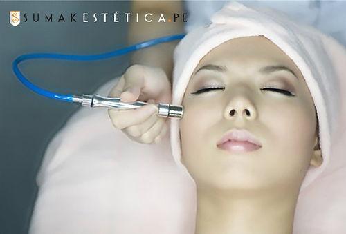 Peeling Punta de Diamante + Limpieza Facial y Más en 3 Sedes