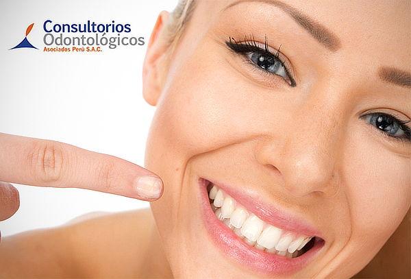 ¡Súper Descuento! Implante Dental de Titanio - Miraflores