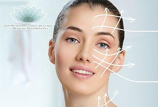 Lifting Facial sin Cirugia - Centro Internacional del Láser