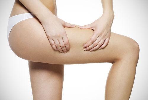 ¡Bye Bye Celulitis! Tratamiento Anticelulítico