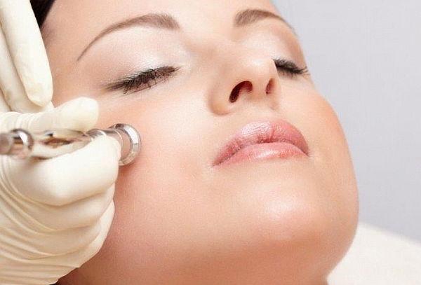 Peeling de Diamante + Mascarilla de Colágeno+Limpieza Facial