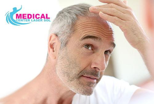 Tratamiento para Alopecia Ultima Generación Sin Cirugías
