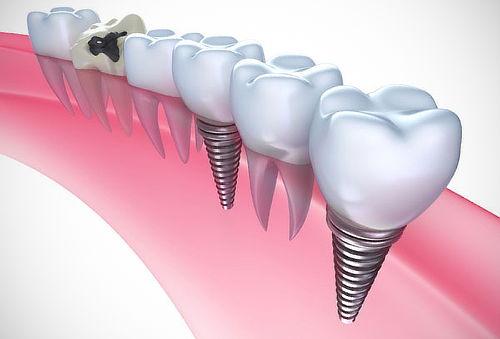 Resultado de imagen de implante dental
