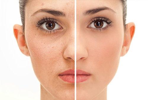 Rejuvenicimiento con Láser CO2 Fraccional Full Face y Más