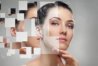 Láser CO2 Fraccionado Full Face + Consulta - Kosmo Medic