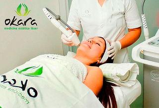 Láser para la Rosácea y Acné en Okara Medicina Estética