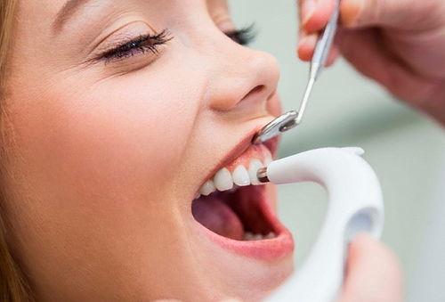 limpieza dental con profilaxis y destartraje