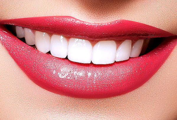 Blanqueamiento Dental + Limpieza con Ultrasonido y Más
