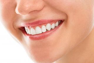 ¡Sonrisa Perfecta!  5 o 7 Curaciones + Blanqueamiento LED y Más